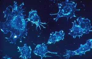 1024px-Cancer_cells_(1)
