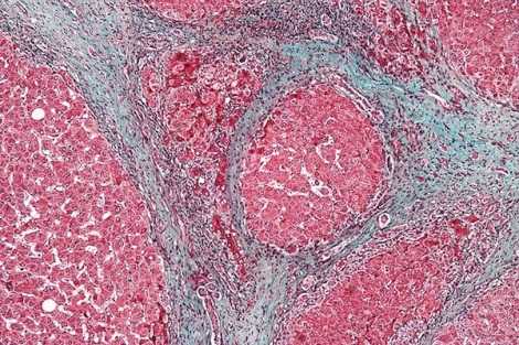 High magnification micrograph of a liver with cirrhosis, a disease in which healthy liver tissue is replaced with scar tissue. (Nephron/Wikimedia Commons)
